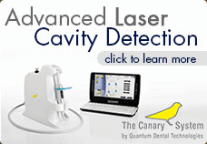 Advanced Laser Cavity Detection Technology