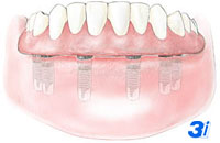 Dental Implants Procedures Near Me in Fargo ND