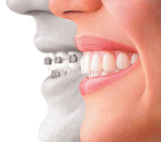 Teeth Trandformation by Invisalign
