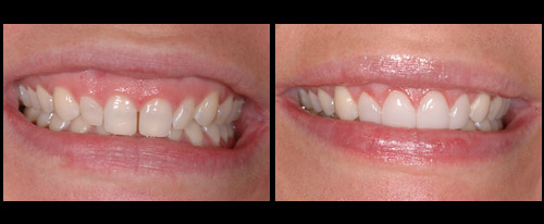 Harr Dental before and after amazing teeth work
